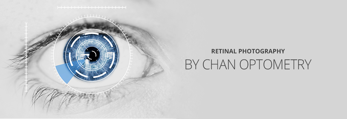 Retinal Photography in Markham