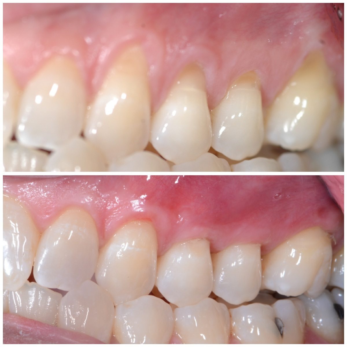 Pinhole Gum Rejuvenation - Before and After Procedure performed by demė's Dr. Thomas George at demė