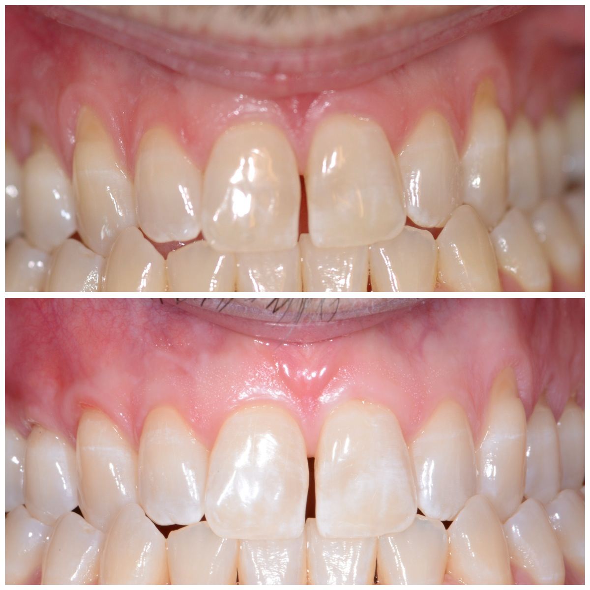 Gum Recession - Before and After Procedure performed by demė's Dr. Thomas George at demė