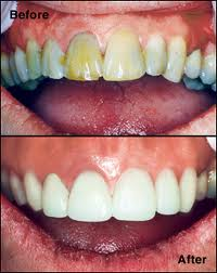 Before and after CEREC veneers - Dental Services in Philadelphia at demė