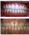 Before and after Invisalign treatment with teeth whitening at demė - Dental Services in Wilmington