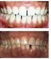 Before and after Invisalign treatment with teeth whitening at demė - Dental Services in Delaware