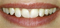 Teeth Before porcelain veneer procedure at demė - Dental Services in Philadelphia