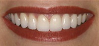 Teeth After porcelain veneer procedure at demė - Dental Services in Doylestown