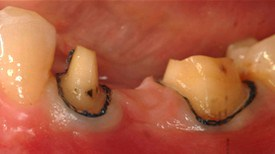 Before porcelain bridge for teeth - Dental Care Wilmington at demė