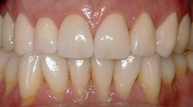 After porcelain crowns for teeth - Dental Care Philadelphia at demė