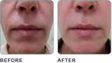 ClearLift Laser Treatment Philadelphia at demė