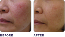 Before and After ClearLift Laser Treatment South Jersey at demė