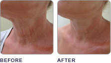 ClearLift Laser Treatment for neck at demė - Skin Care Services in Wilmington