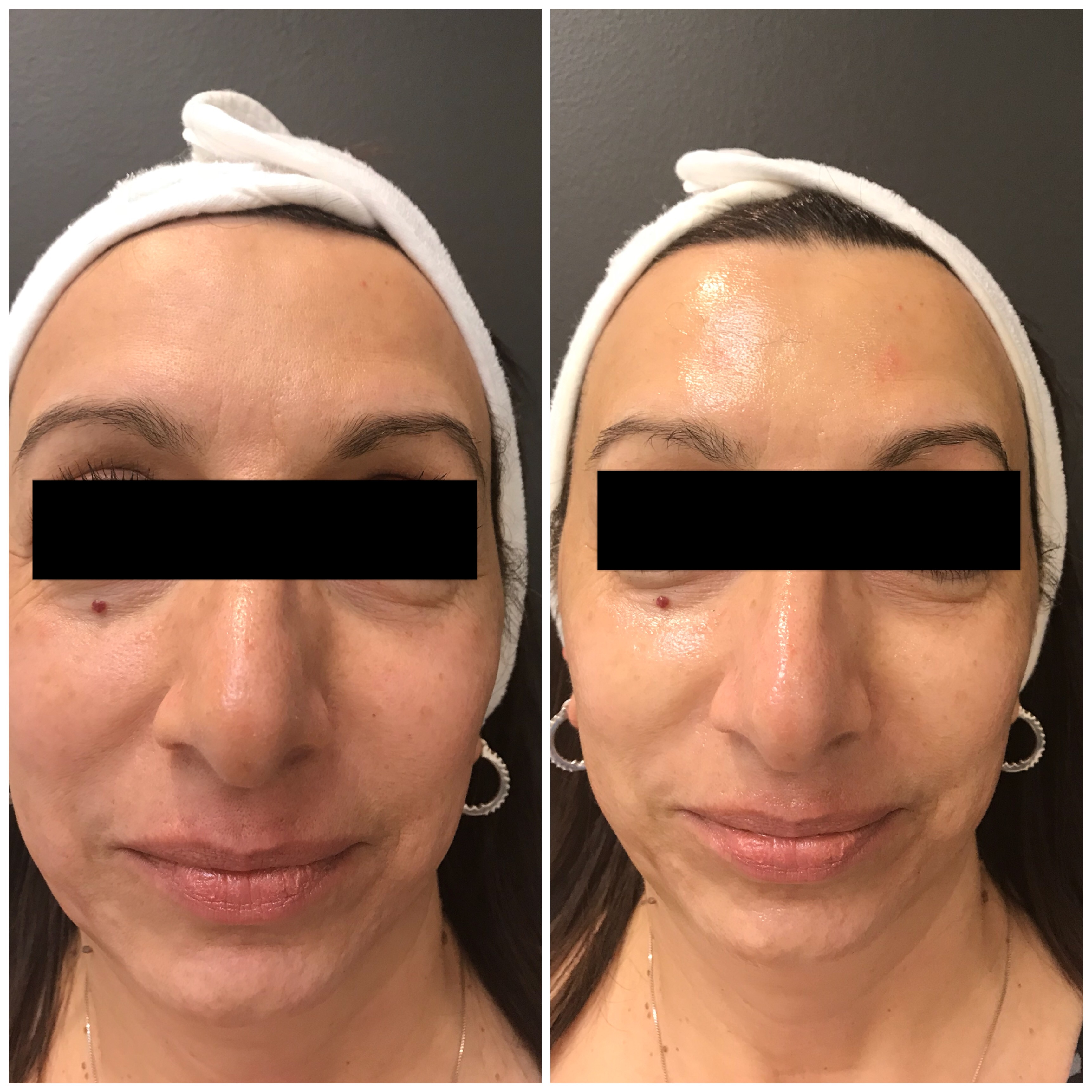 The Royal Treatment Peel - Chemical Peel in Delaware at demė