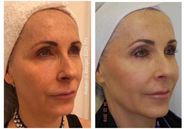 Juvederm and Restylane Treatment Philadelphia at demė