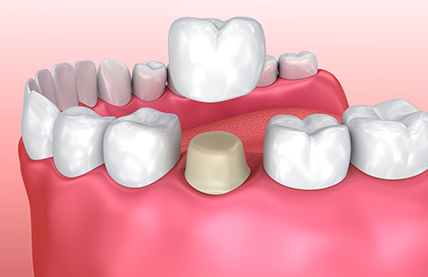 Dental Crowns Toronto - Dentistry Services by Dentists on Bloor