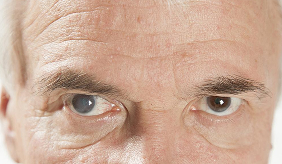 7 Signs You Might Have Eye Cataracts